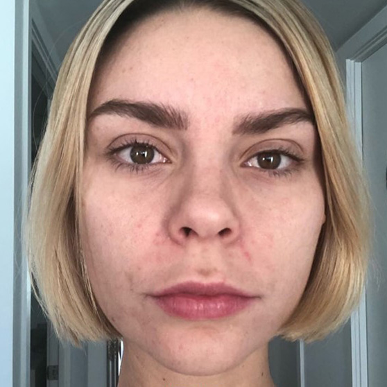 Miracle 10 Skincare Before and After Photo