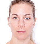 Miracle 10 Facial Peel Treatment Before & After Photo