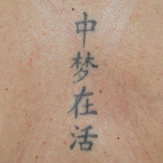 PicoWay Tattoo Removal