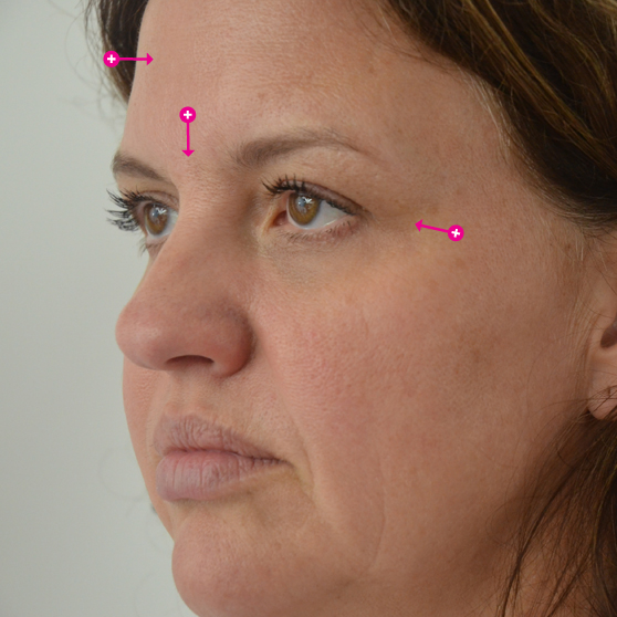 Botox Before & After Photo