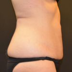 CoolSculpting Women Before and After Photo