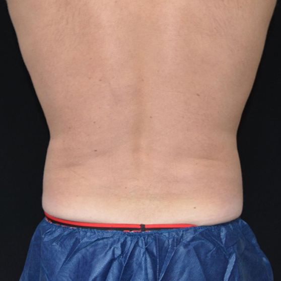CoolSculpting for Men Before and After Photo