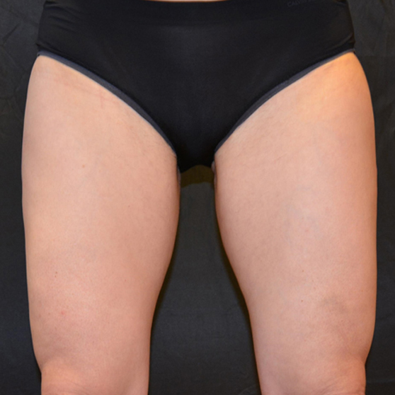 CoolSculpting for Women Before and After Photo