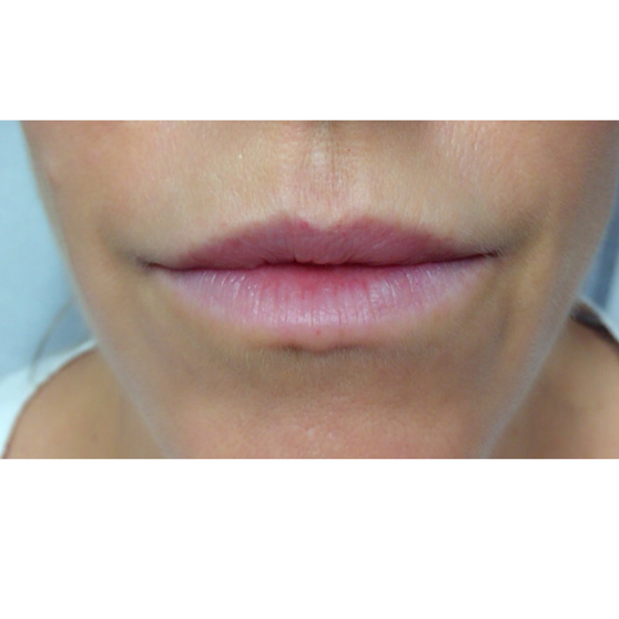 Lip Filler Before and After Photo