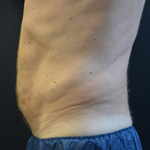 CoolSculpting Men Before and After Photo
