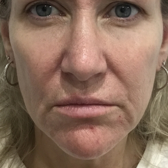 Dermal Fillers Before & After Photo