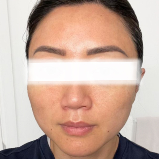 Thread Lift Before and After Photo