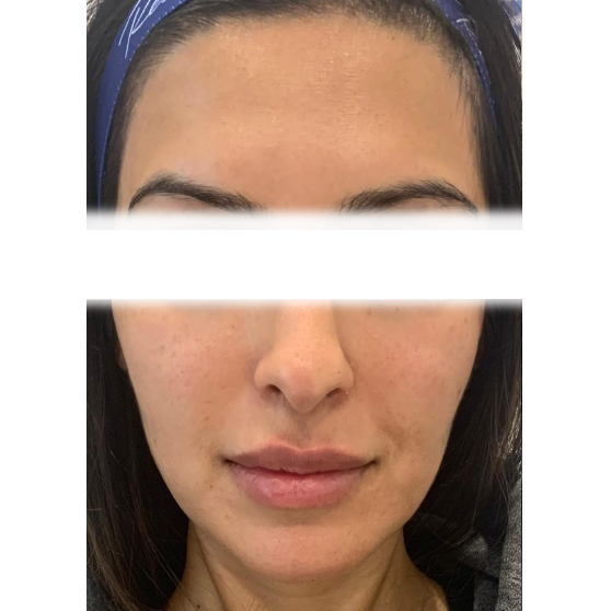 PRP/PRF Before and After Photo